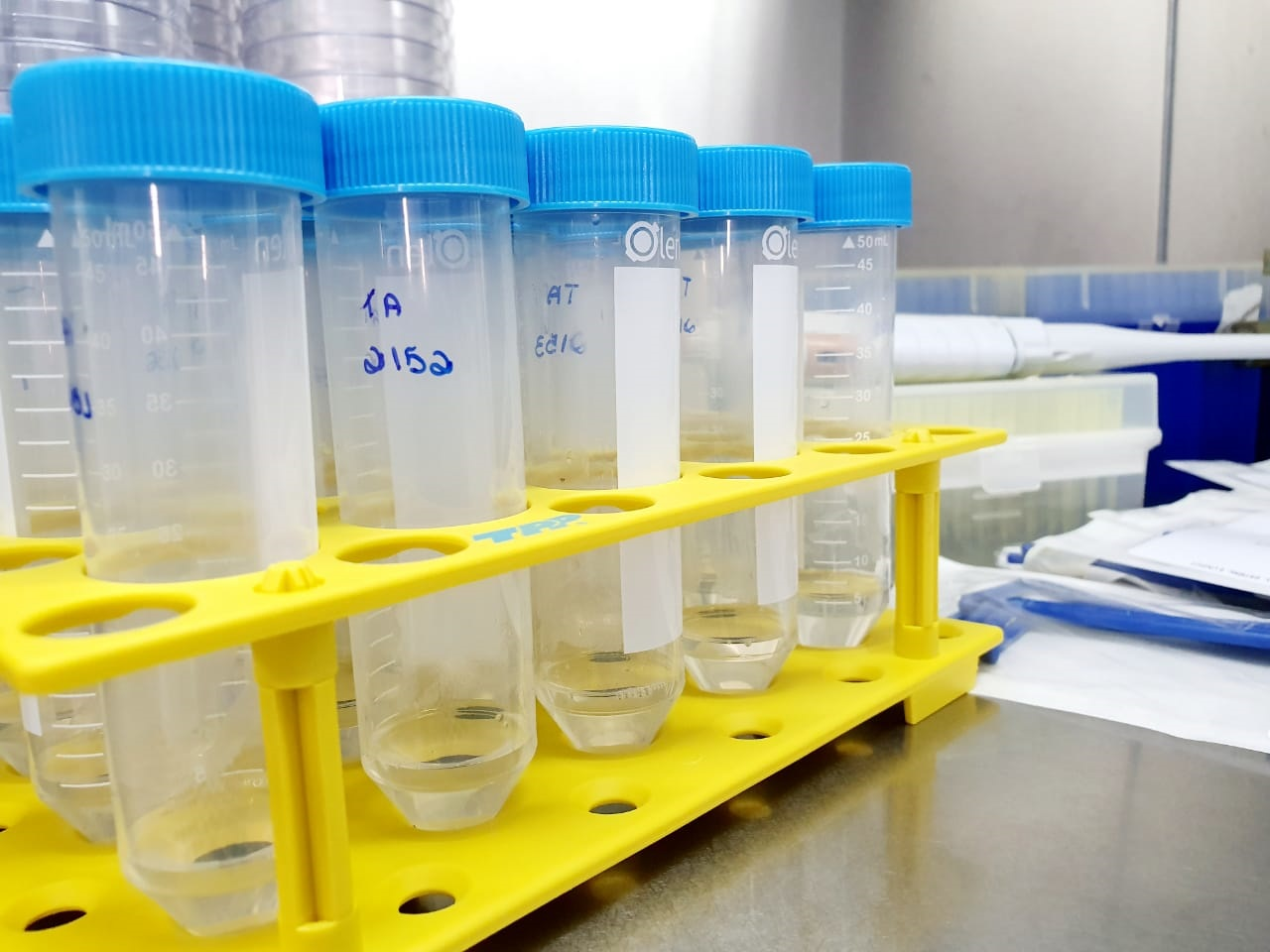 Análise microbiológica da água - 1